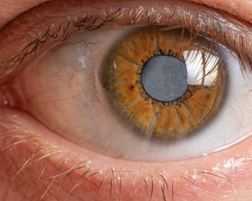 Caratacta clouding of the lens of the human eye