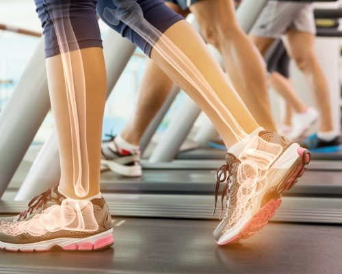 Digital composite of Highlighted ankle of woman on treadmill