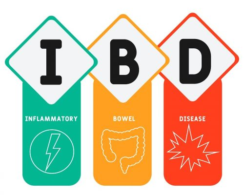 IBD - Inflammatory Bowel Disease acronym. medical concept background. vector illustration concept with keywords and icons. lettering illustration with icons for web banner, flyer, landing page